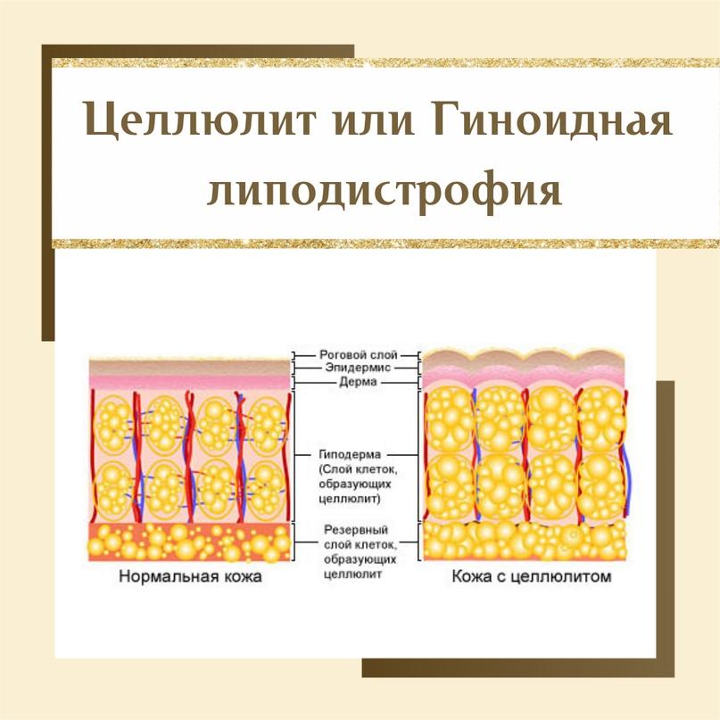 Магистральный коктейль и когда встает вопрос: «Где эффект от липолитической мезотерапии»?, изображение №3