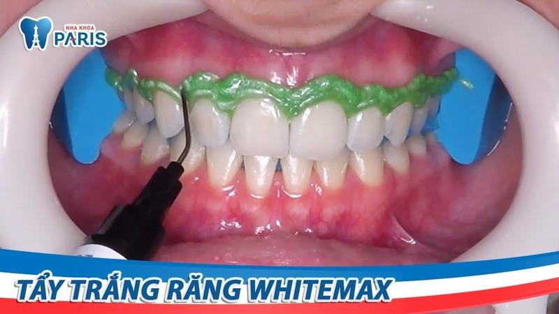 Quy trình tẩy trắng răng WhiteMax | Nha khoa Paris