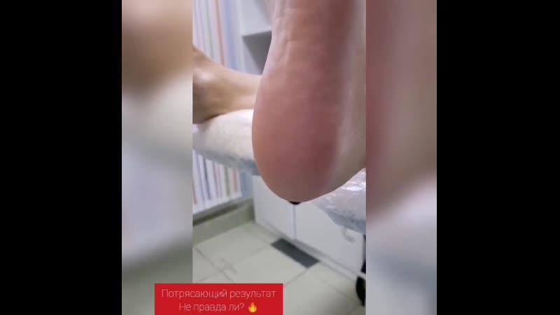 Педикюр обработка стопы