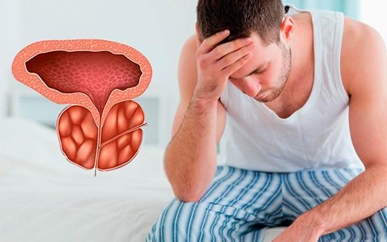 Простатит проблемы с кишечником болезнь простатита информация