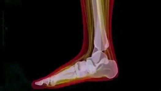Ayakkabı tercihi çok önemli ! sağlık mı güzellik mi ayaklarımız çok önemli - Dailymotion Video