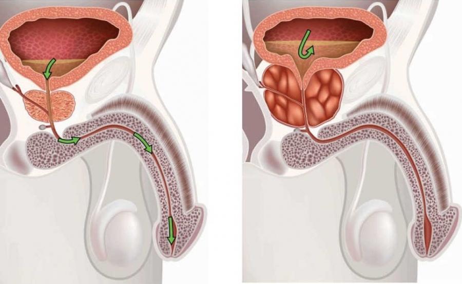 Аденома простатит симптомы цена лазера для лечения простатита