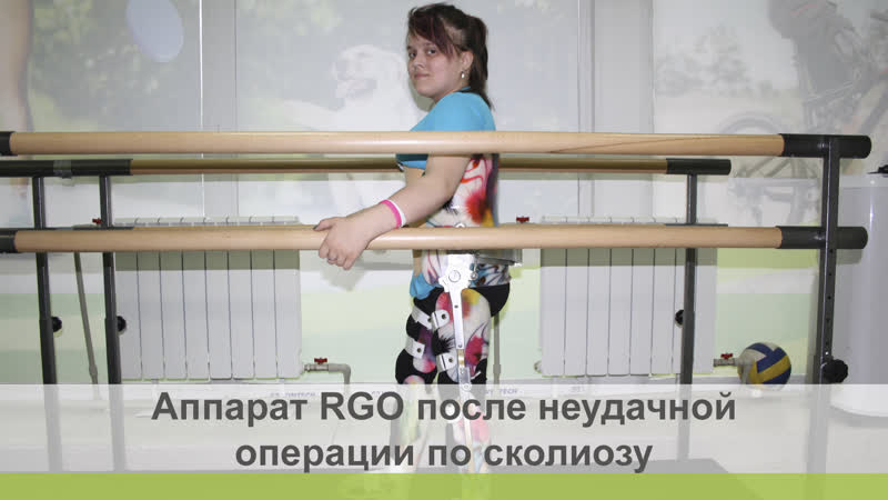 RGO после неудачной операции по сколиозу