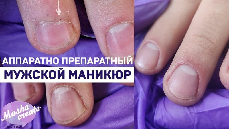 Аппаратно-Препаратный маникюр. Мужской маникюр - слоящаяся кожа грубая кутикула.