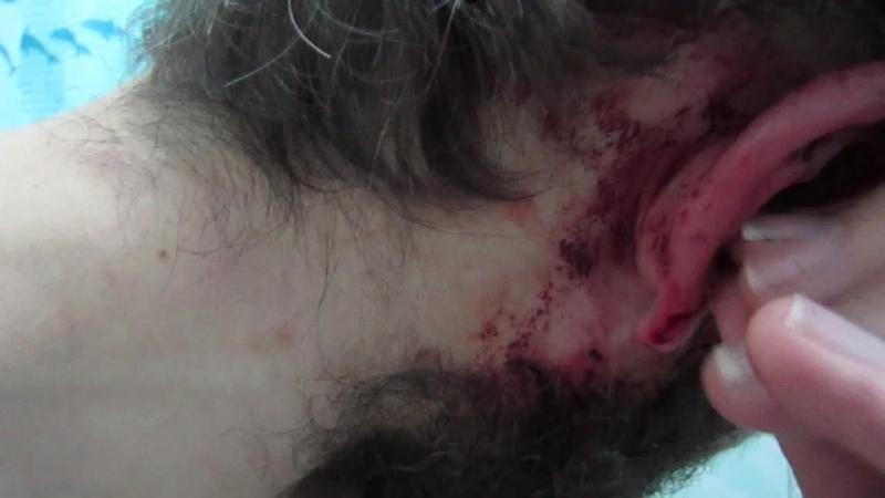 ПОКАЗЫВАЮ ПОБОИ видео после того избиения, которое я забыл выложить или ютуб его заблочил