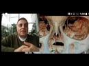 Video Talks By Dr.Murat Enoz - Nasal Septum Peroration Closure Success
