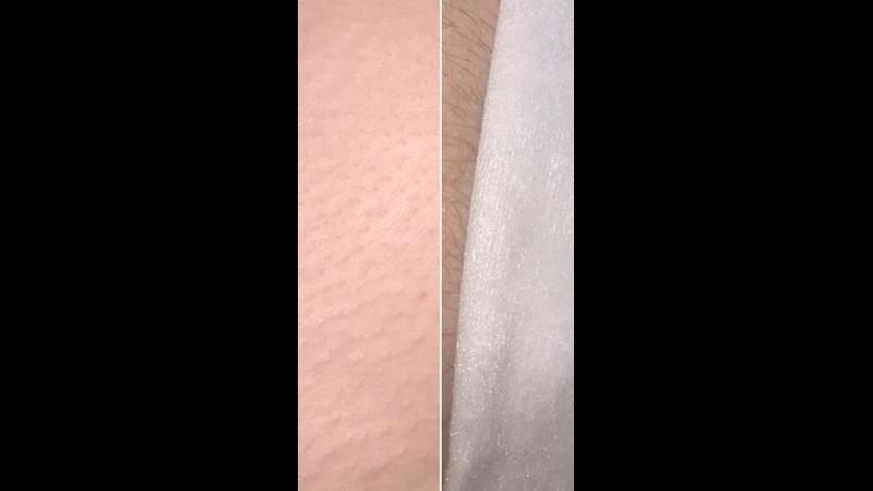 Тонкий волос нежная кожа