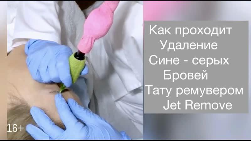 Как проходит удаление сине серых бровей тату ремувером Jet Remove в СПб Удаление татуажа всех цветов и типов пигментов в Питере