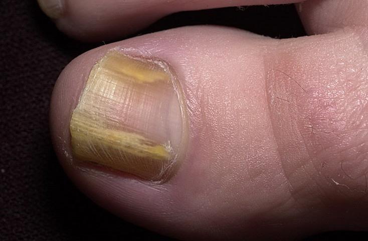 Как лечить онихомикоз ногтей на ногах?, изображение №2
